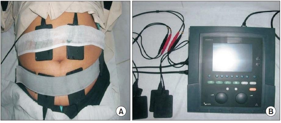 Tratamientos electroestimulación