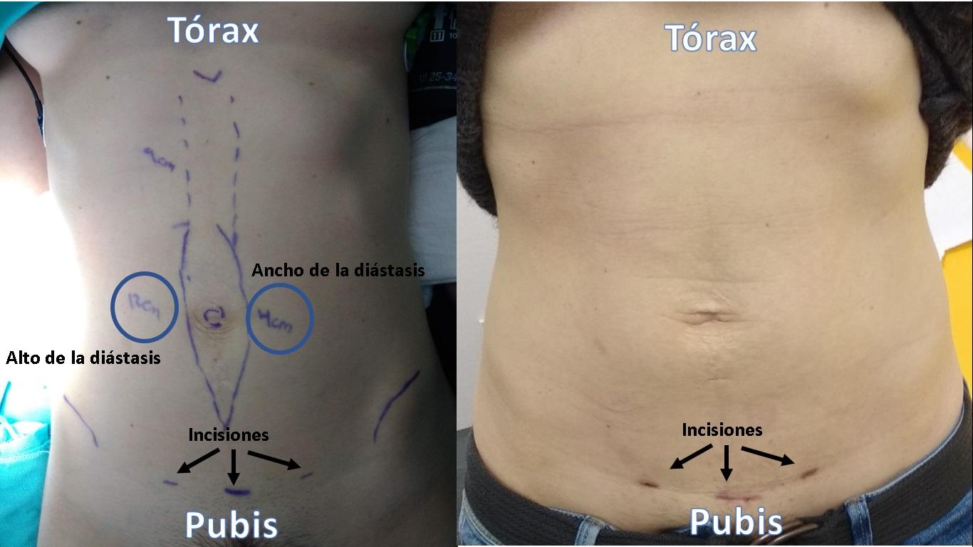 cirugía mini-invasiva imagen 2