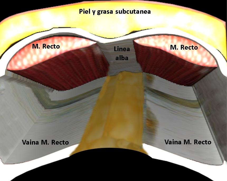 cirugía mini-invasiva imagen 7