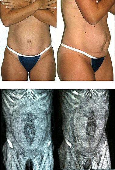 Qué es la diástasis abdominal