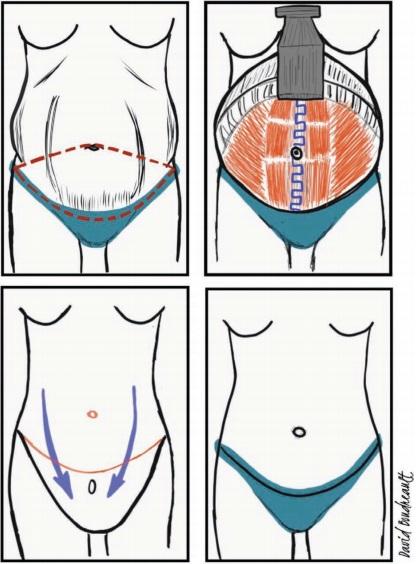 Testimonio de una paciente operada de diástasis abdominal